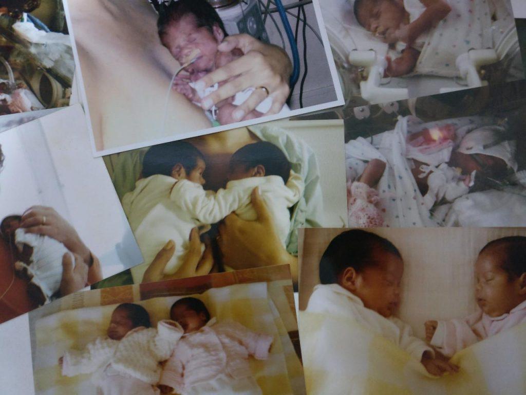 Rafaela e Cátia quando nasceram